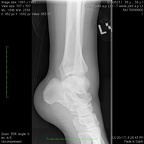 T Ankle joint a.p. Lt3