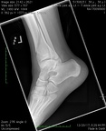 T Ankle joint a.p. Lt4